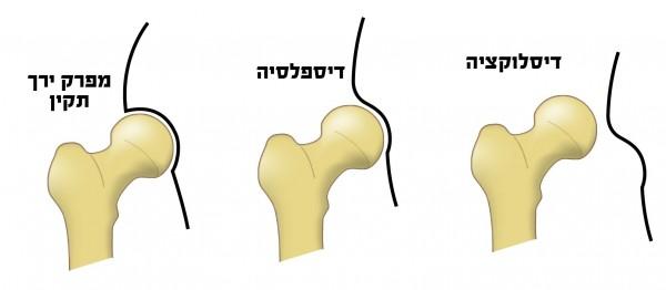 נקיעה מולדת לעומת מפרק ירך תקין