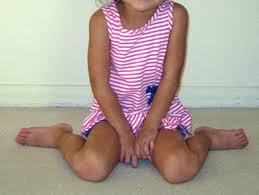 עיוות בגלל סיבוב של מפרק הירך גורם להליכה עם כפות רגליים פונות פנימה