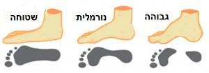 כף רגל שטוחה לעומת מצב תקין