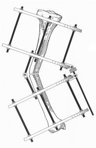 - מכשור איליזרוב לטיפול בעיוותים רגל עקומה לפני הטיפול