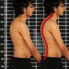 בעיות בעמוד שדרה - כיפוזיס