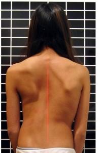 בעיות בעמוד שדרה -עקמת