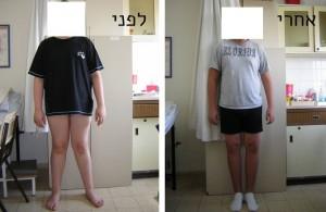 רגלי איקס לפני ואחרי ניתוח